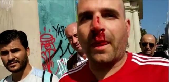 Un miembro de Jusapol al que un independentista le ha roto a nariz (Foto: Jusapol)