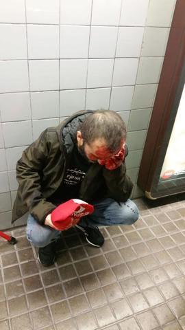 jusapol herido en el metro de barcelona