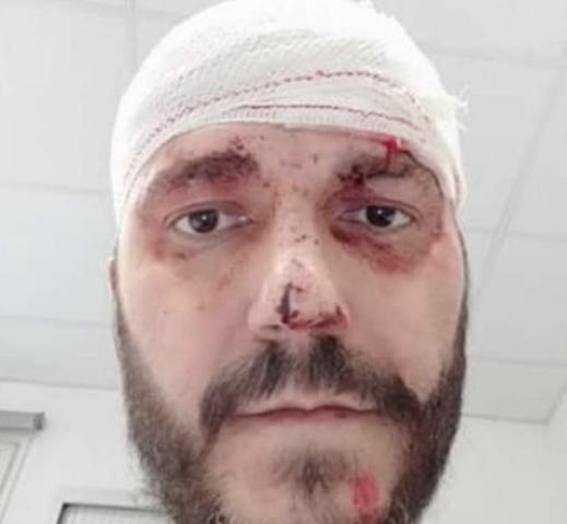 El hombre que ha sido empujado por la espalda por las escaleras del metro, tras haberle suturado las heridas en la cabeza