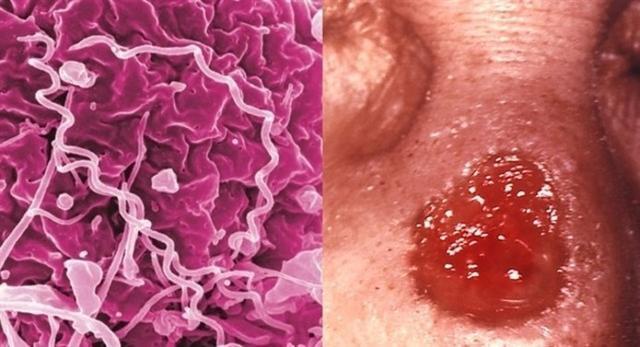 La tasa de sífilis en Baleares se situó en 18,5 casos por cada 100.000 habitantes (Foto: EP)