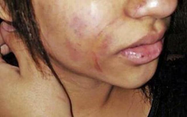 La chica sufrió numerosos golpes y arañazos en su cara